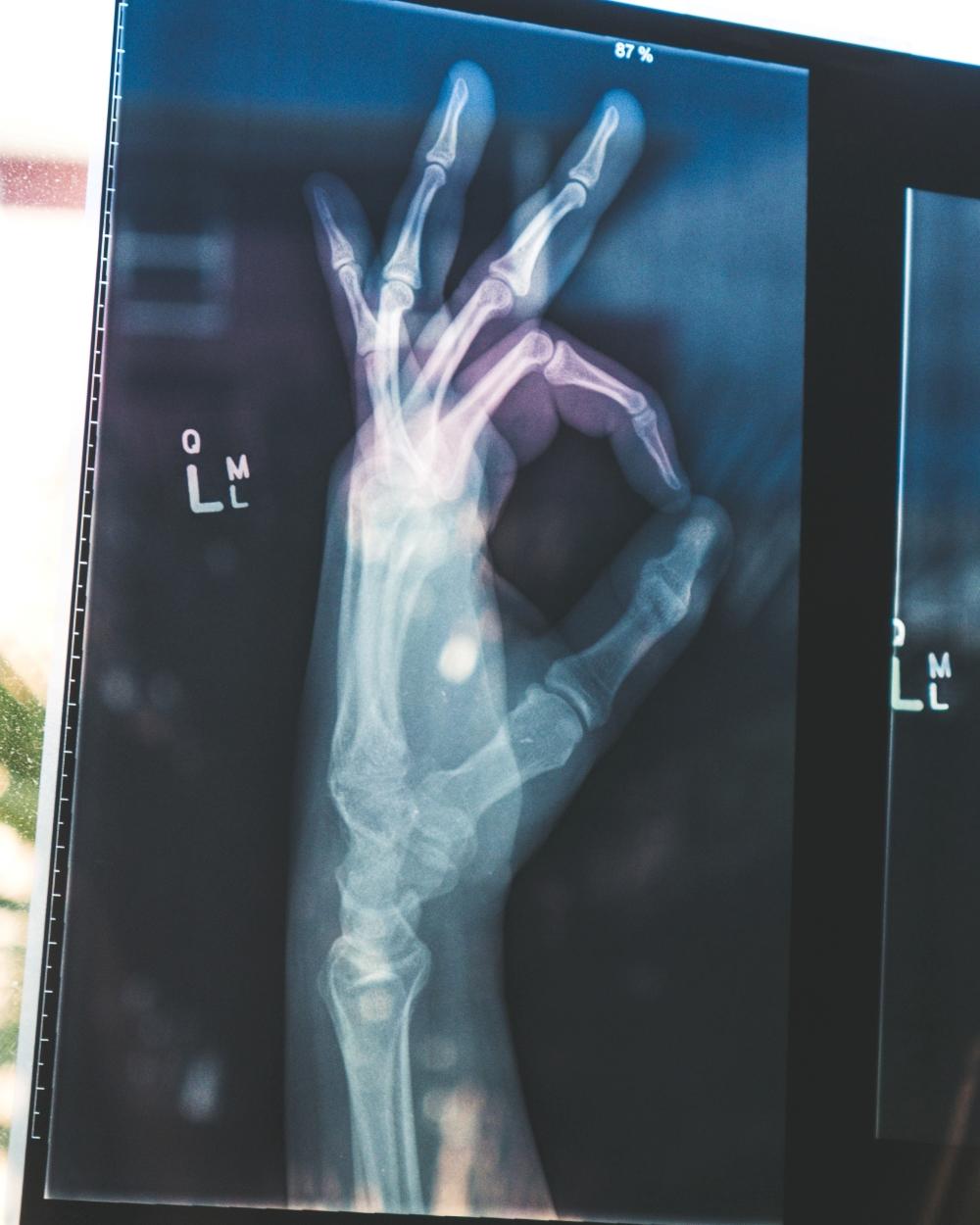 bone xray osteoporosis